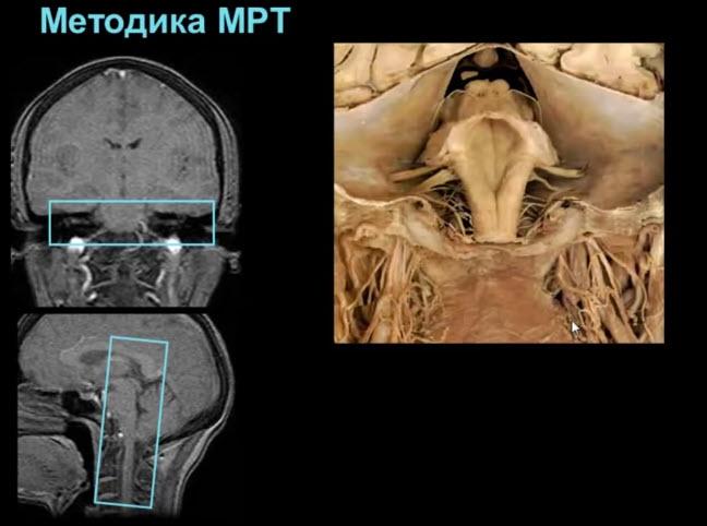 Каудальная группа черепных нервов