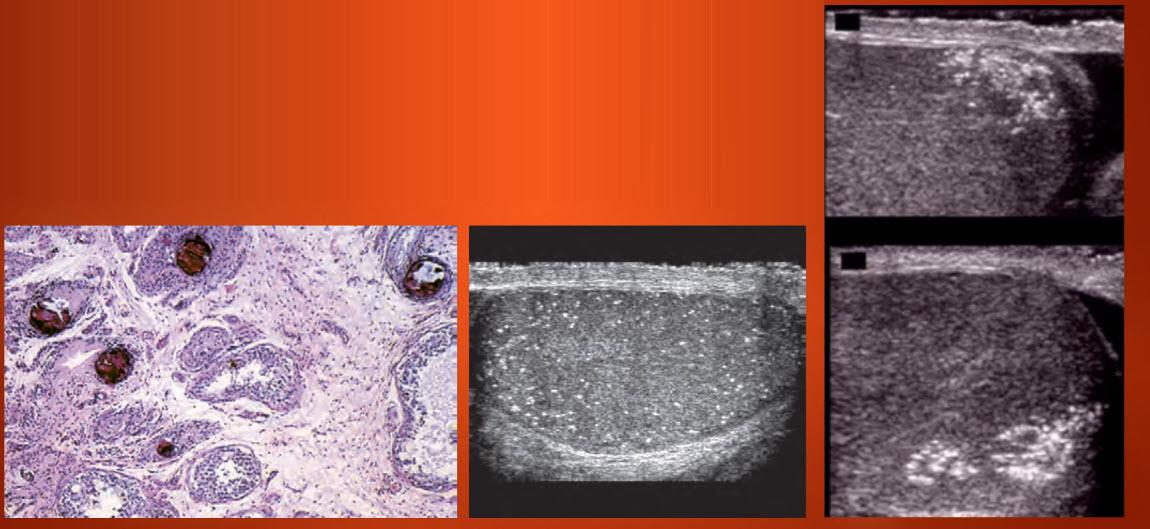 Микрокальциноз (микролитиаз) яичка