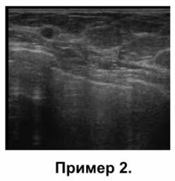 Позади кист, расположенных вблизи грудной мышцы (пример 2)