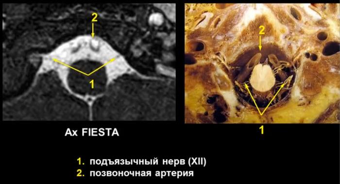 XII — подъязычный нерв