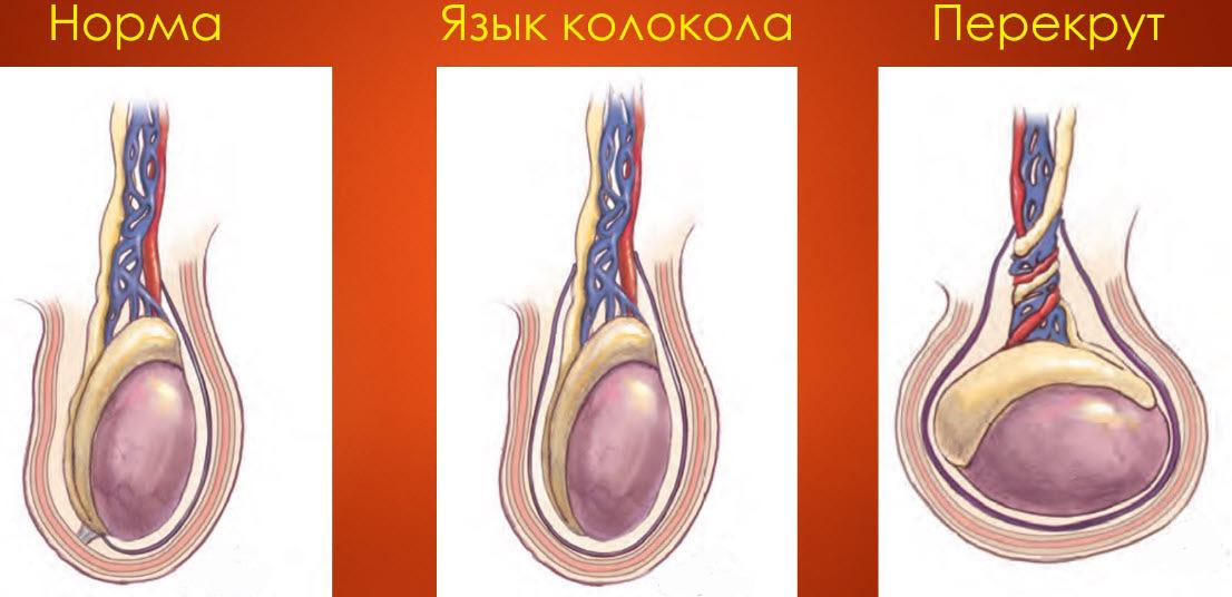Перекрут яичка (внутривлагалищный)