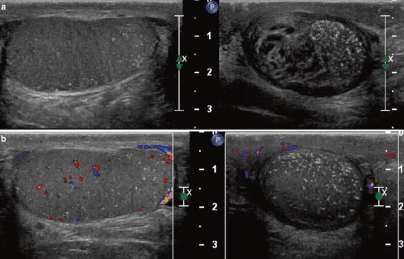 Дегенеративные изменения после перекрута яичка