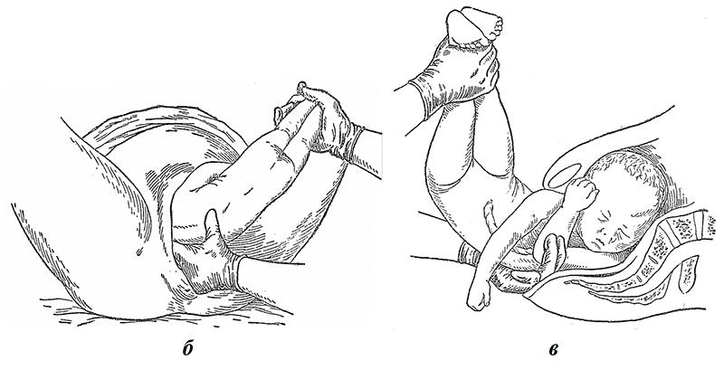 б — ножки сильно отведены в сторону противоположного пахового сгиба