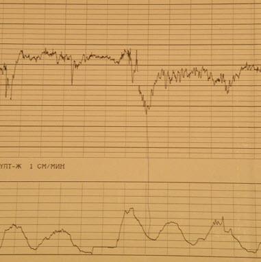 Плавающий базальный ритм - прогностически неблагоприятный признак
