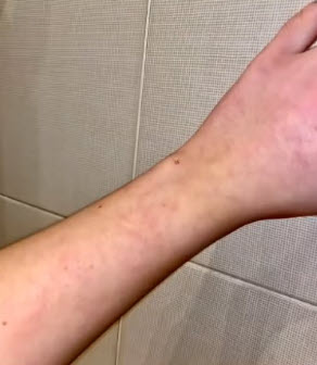 Мраморность кожи при формирующемся лонг-ковиде