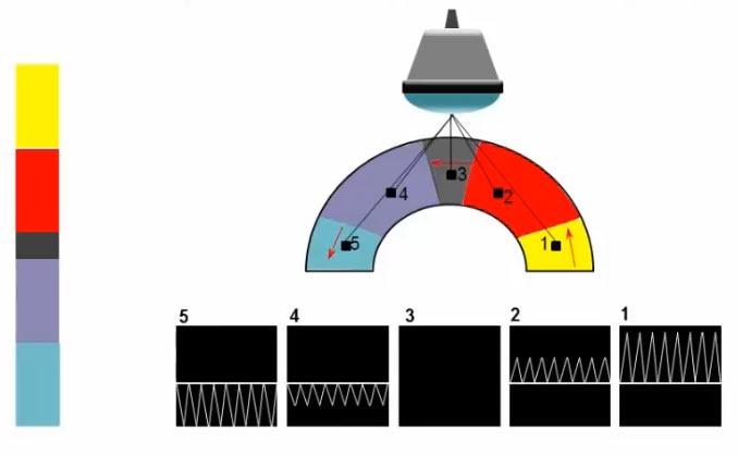 Принцип формирования изображения при допплерографии