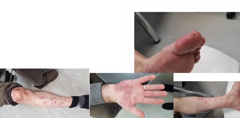 Спустя 7 дней появились геморрагические высыпания на кистях рук, стопах и голенях, т.н. ковидные