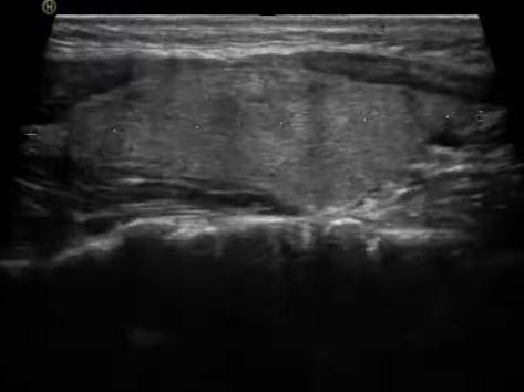 Диффузные изменения по типу диффузного (эутиреоидного) зоба