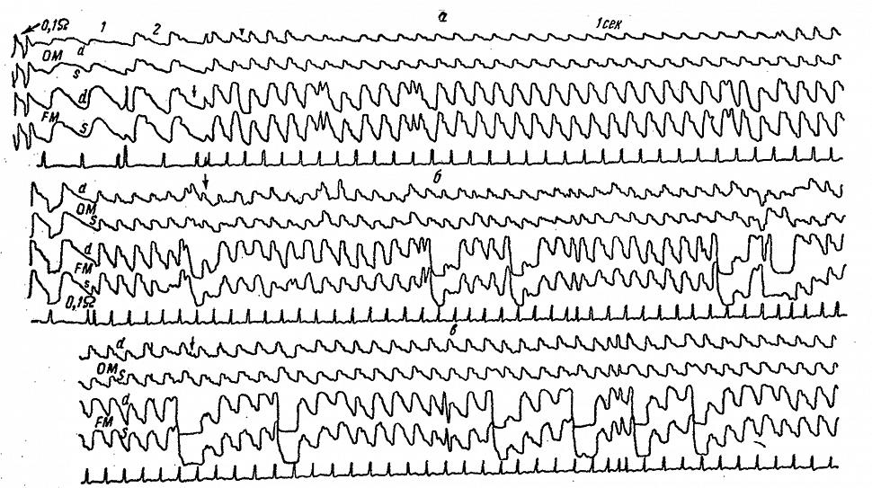 Динамика затылочных (ОМ) и полушарных (FM) РЭГ больного А. с полной закупоркой правой позвоночной артерии
