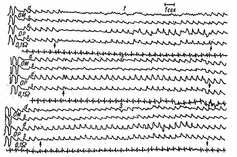 Затылочные РЭГ больной Ш. с вертебрально-базилярной недостаточностью, вызванной смещением правой позвоночной артерии остеофитом