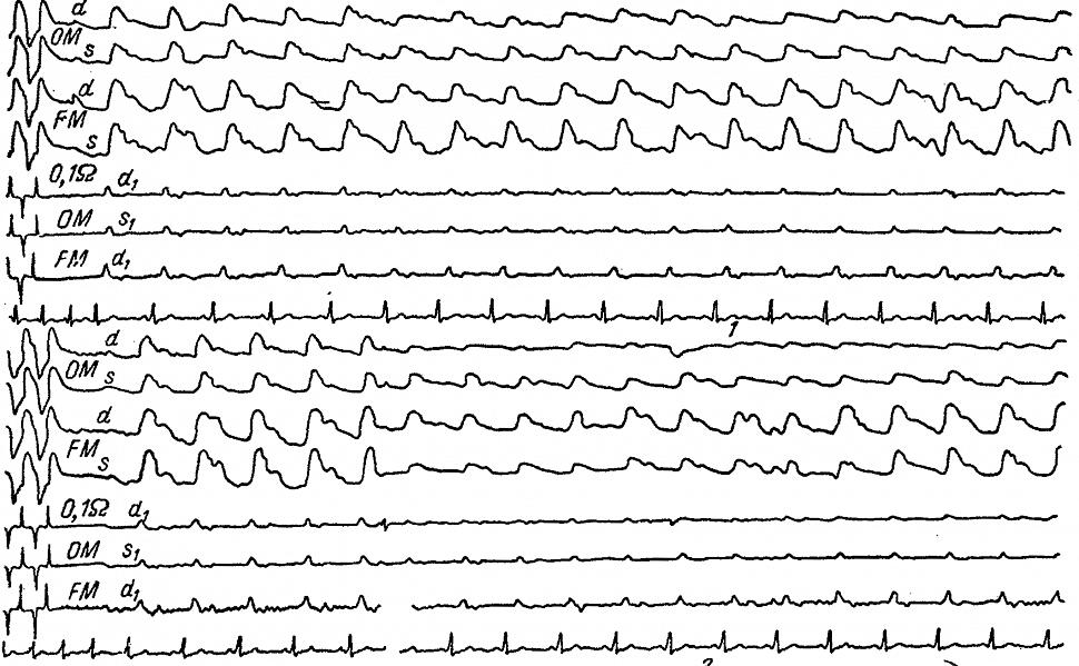 Уменьшение затылочных (ОМ) РЭГ у больного Л. с подвывихом суставных отростков шейных позвонков.