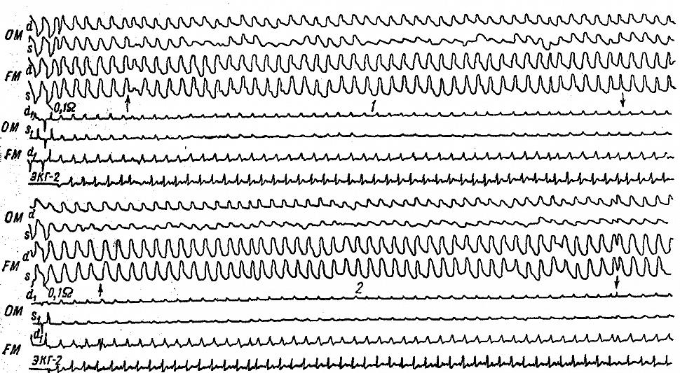 Уменьшение амплитуды затылочных РЭГ у больной Б. с гипертонической болезнью и остеофитами