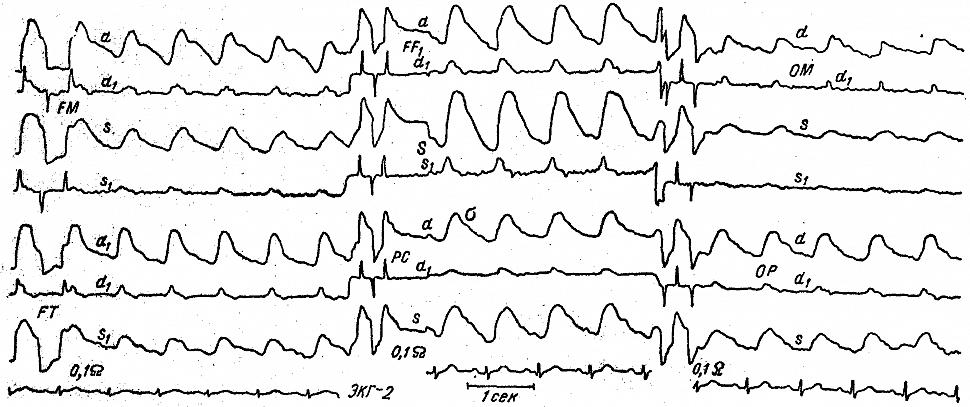 аженная межполушарная асимметрия полушарных (FM), лобно-височных (FT)