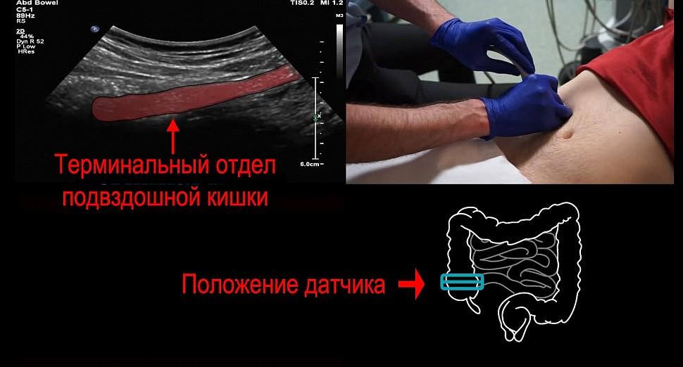 Найти терминальный отдел подвздошной кишки важно, потому что в нем могут идти патологические процессы