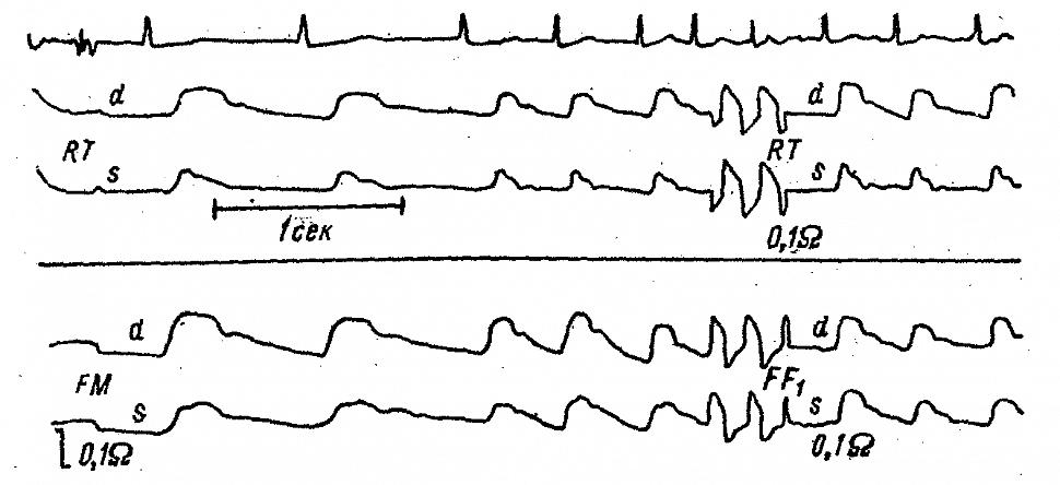 Регионарные и полушарные РЭГ больной К. с полной закупоркой ствола левой средней мозговой артерии