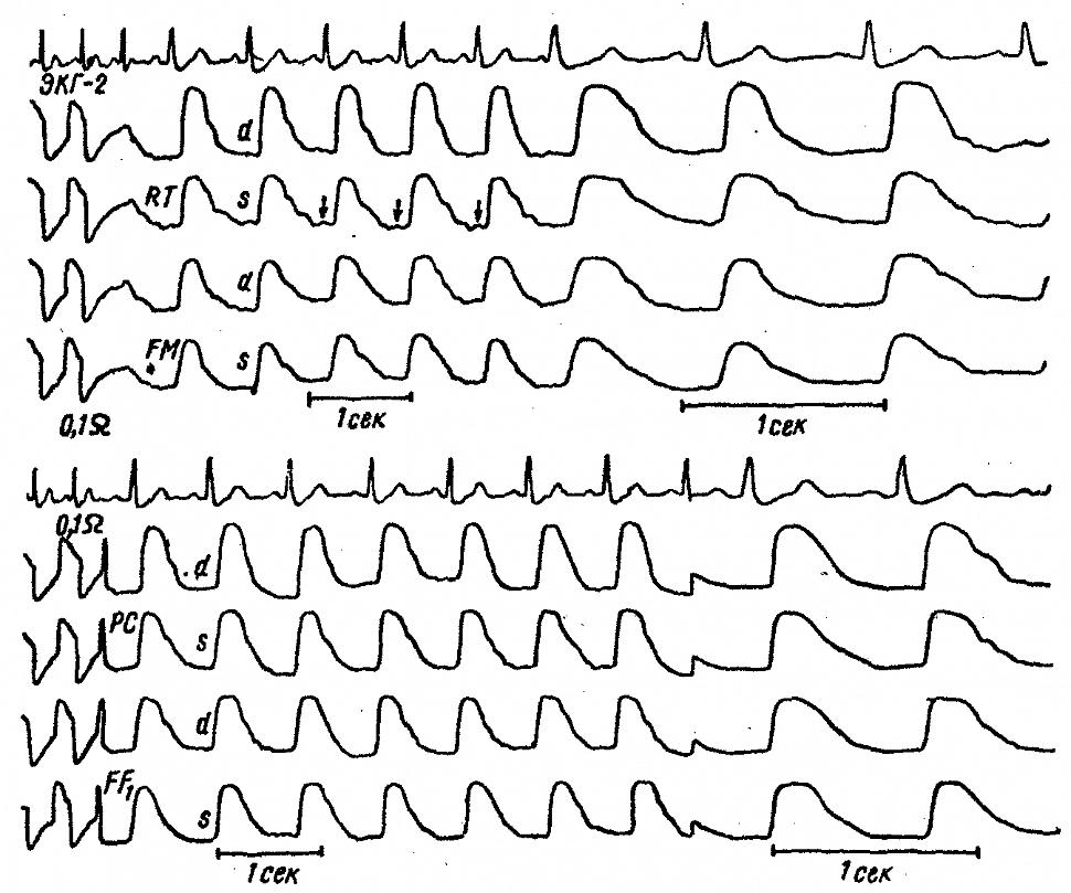Межполушарная асимметрия только регионарных РЭГ больной С, с закупоркой ствола левой средней мозговой артерии