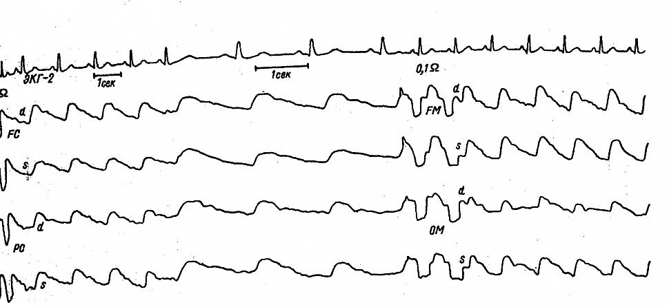 Полушарные и регионарные РЭГ больной К. с поражением левой передней мозговой артерии