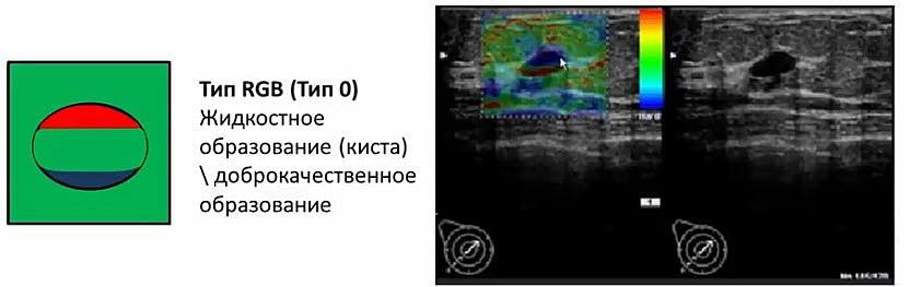 Категории образований МЖ по данным эластографии (RGB)