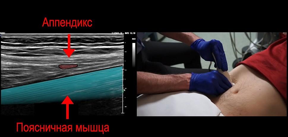 Полезный анатомический ориентир - поясничная мышца