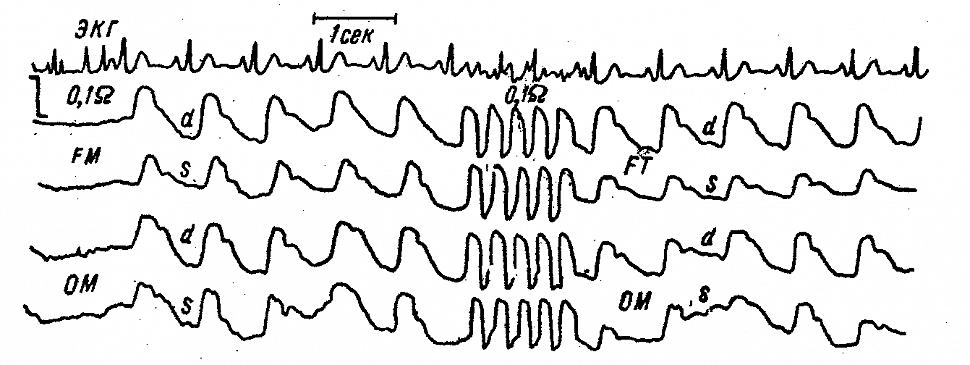 Полушарные и регионарные РЭГ больной К. с субарахноидальным кровоизлиянием в передних отделах мозга слева