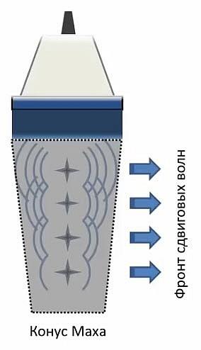 Физические основы эластографии сдвиговой волны