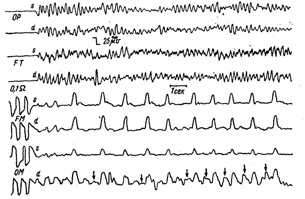 Синхронно записанные ЭЭГ и РЭГ больной Л. с обширным субарахноидальным кровоизлиянием в области основания мозга