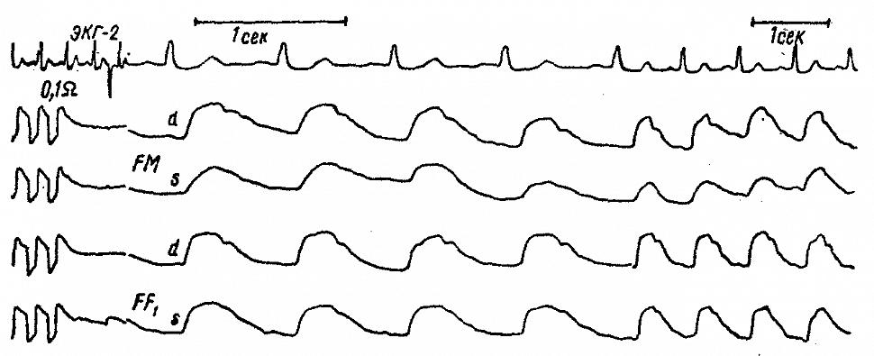 Полушарные и регионарные РЭГ больной Ч. с гематомой, расположенной латерально от внутренней капсулы левого полушария.
