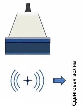 ARFI - эластография (ARFI — Acoustic Radiation Force Impulse) или pSWE - point Shear Wave Elastography
