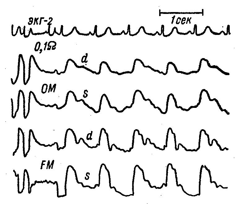 РЭГ больного Н. с массивным кровоизлиянием в глубокие отделы левого полушария