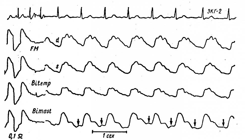 Реоэнцефалограммы больной К. с диапедезным кровоизлиянием в ствол мозга