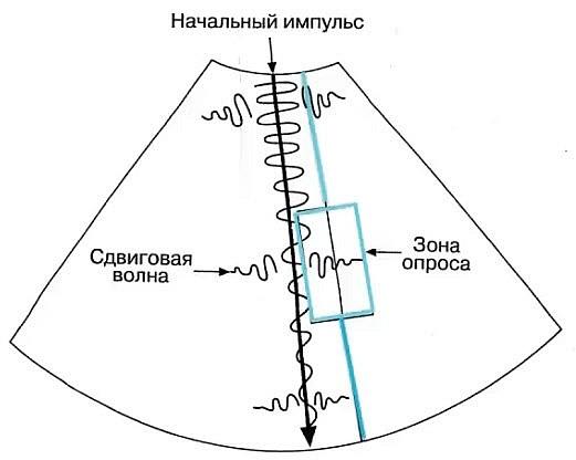 Схема технологии ARFI-эластографии