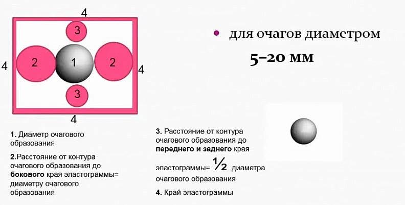 Схема оптимального расположения очага на экране для оценки его в режиме компрессионной эластографии. Для очагов 5-20 мм