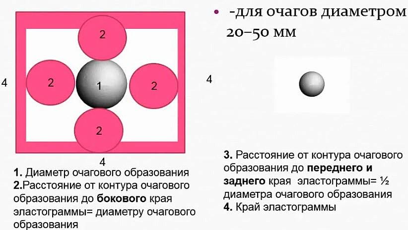 Схема оптимального расположения очага на экране для оценки его в режиме компрессионной эластографии. Для очагов 20 мм - 50 мм