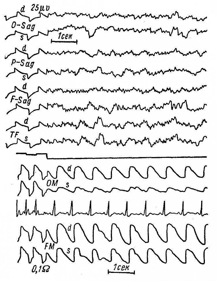 ЭЭГ и РЭГ больной М. с массивной опухолью в левой заднелобно-парасагиттальной области