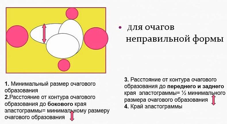 Схема оптимального расположения очага на экране для оценки его в режиме компрессионной эластографии для очагов неправильной формы