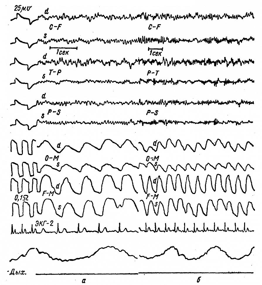 ЭЭГ и РЭГ больной С. с арахноидэндотелиомой правой затылочно-теменной области