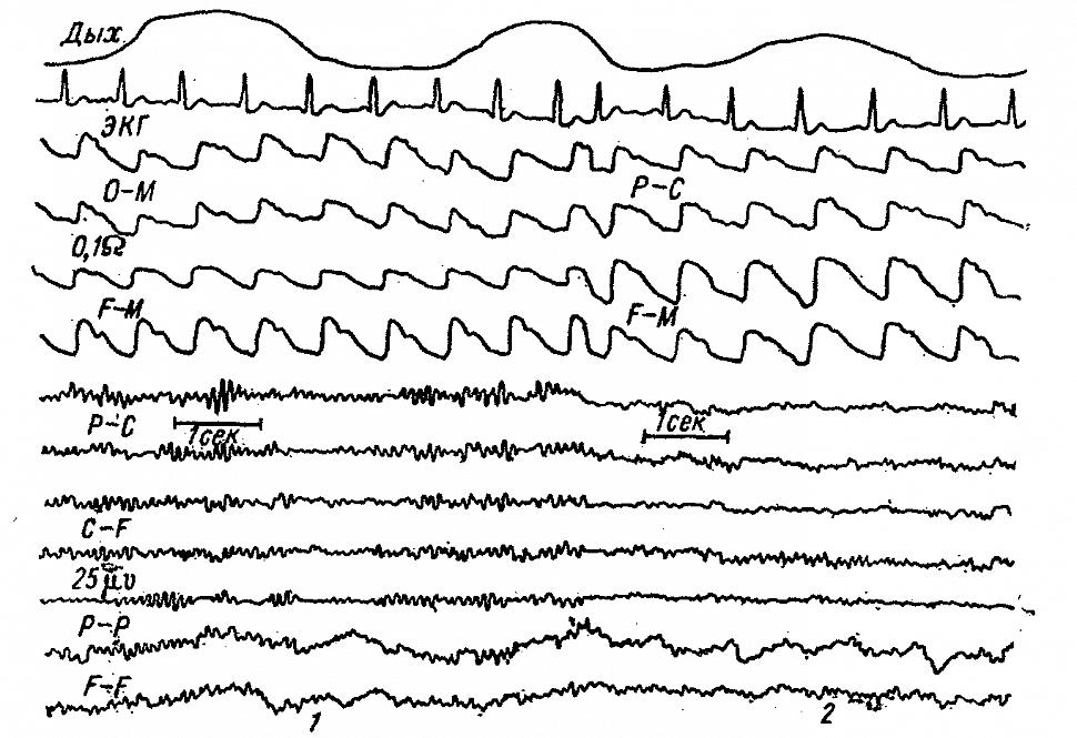 Динамика РЭГ и ЭЭГ больного А. с опухолью гипофиза