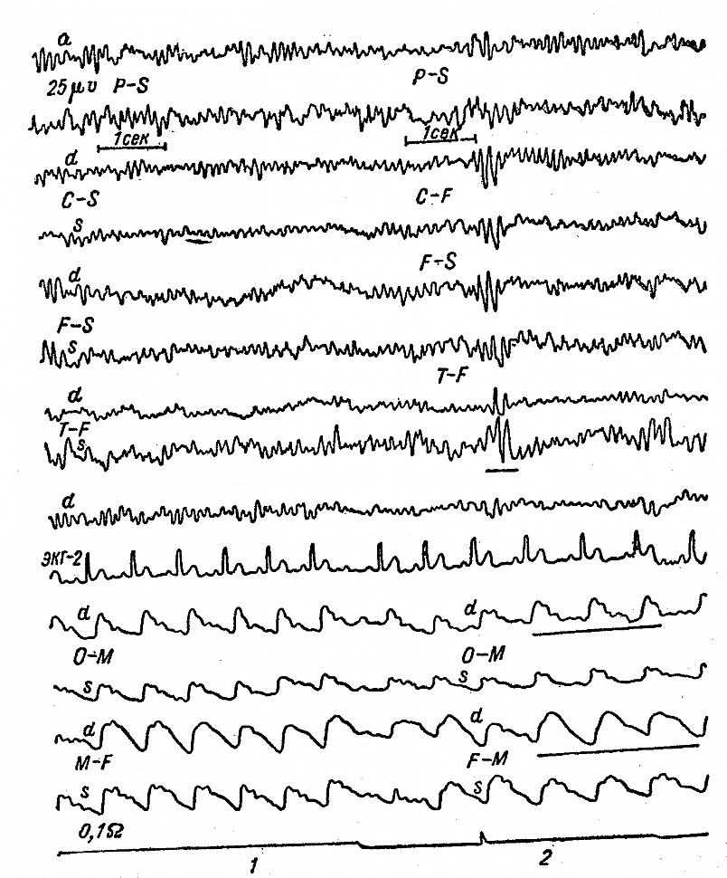 Динамика РЭГ и ЭЭГ больного Г. с опухолью левой височно теменно-затылочной области