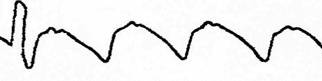 Рис. 38. Реоэнцефалограмма при затруднении венозного оттока