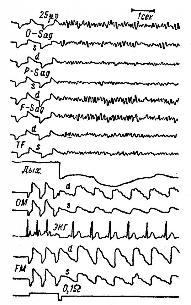 ЭЭГ и РЭГ больного Н. с каротидно-кавернозным соустьем справа