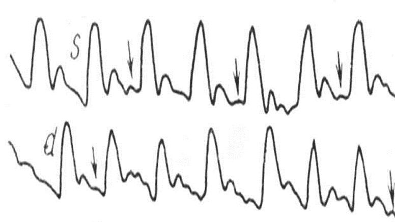 Сосудистая атония при стойком венозном застое. Выраженные пресистолические волны