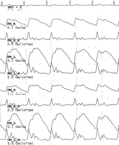 Рис. 41. Изменения РЭГ при внутричерепной гипертензии