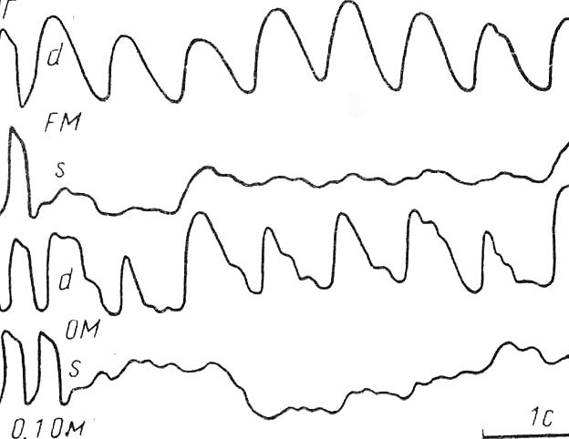 Рис. 42. Ишемический инсульт в глубокие отделы левого полушария