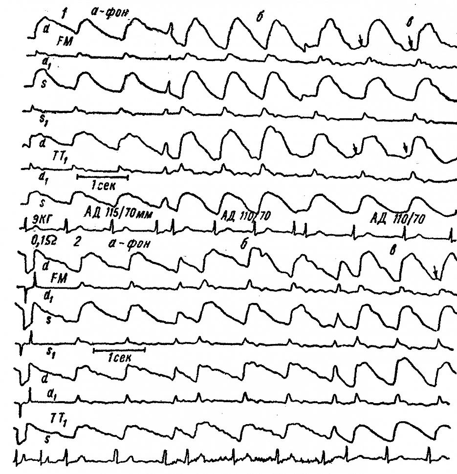 Динамика реограмм больших полушарий и кожно-мышечного покрова больной У. с гепатоцеребральной дистрофией