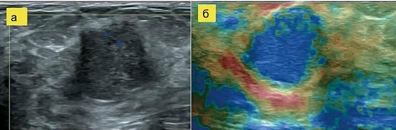 Рак молочной железы. Категория BIRADS - 4Б