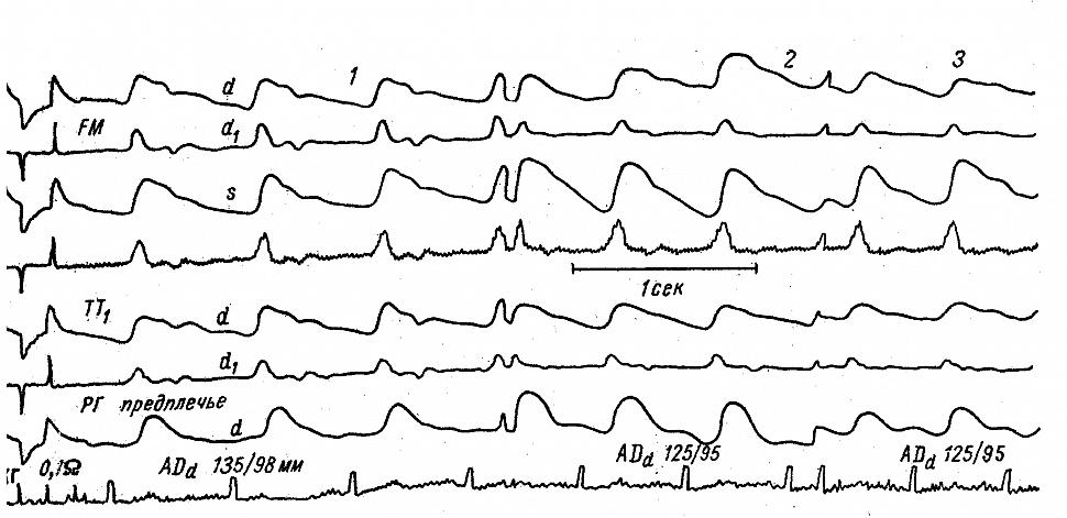 инамика реограмм больной К. с гепато-церебральной дистрофией во время преходящего нарушения кровообращения