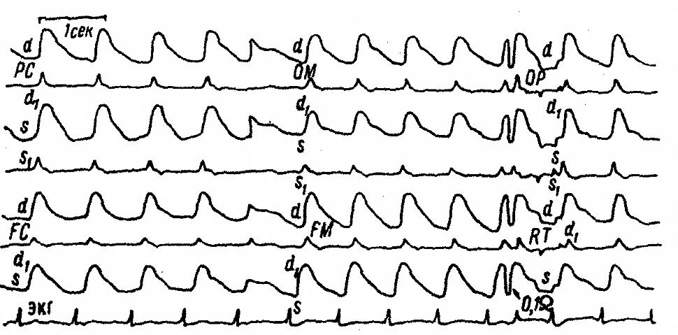 Значительное увеличение амплитуды полушарных и регионарных РЭГ больного К. с большими эпилептическими припадками