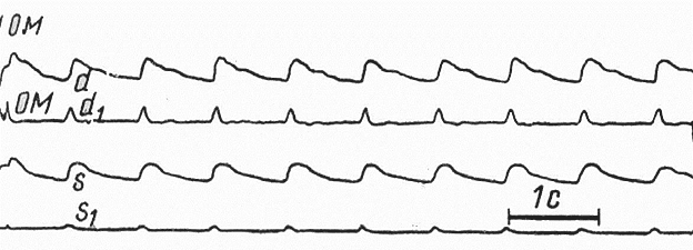 Рис. 45. Окклюзия левой позвоночной артерии
