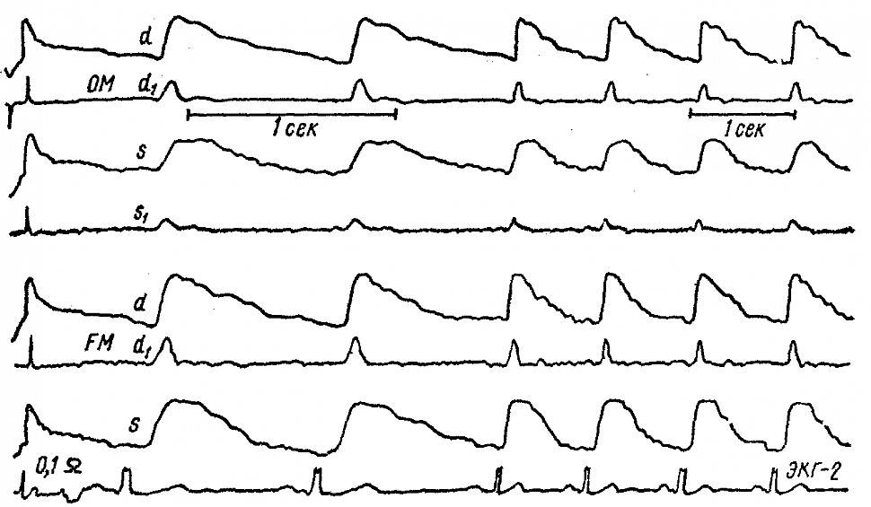 РЭГ больного П., 56 лет, с судорогами джексоновского типа в правой руке.