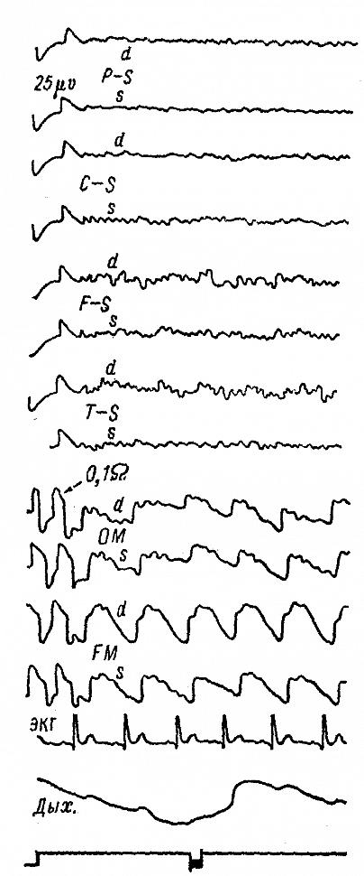 ЭЭГ и РЭГ больного М., 15 лет, с фокальной эпилепсией в связи с рубцовыми изменениями после оперативного вмешательства
